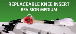 MITA KNEE VIDEO - Revision knee