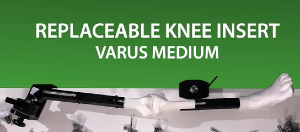 MITA KNEE VIDEO - Varus knee insert